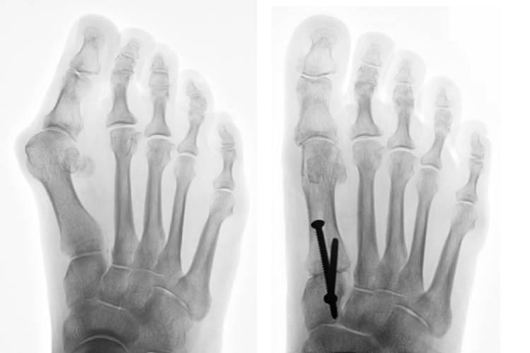 magnetoterapia e alluce valgo: radiografia di un piede con alluce valgo